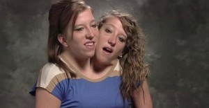 Conjoined twins land their own reality TV show