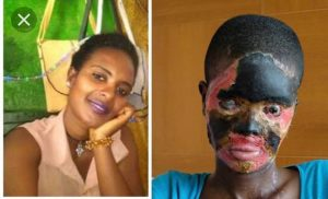 SEE PHOTOS:  Koforidua Technical Uni. Student Bathed With Acid.