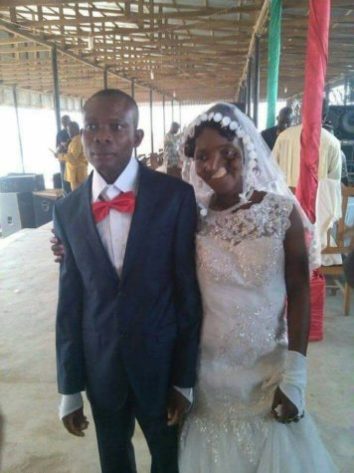 Man Marries His Sweetheart After Accident Deformed Her Face –See Heartwarming Photo