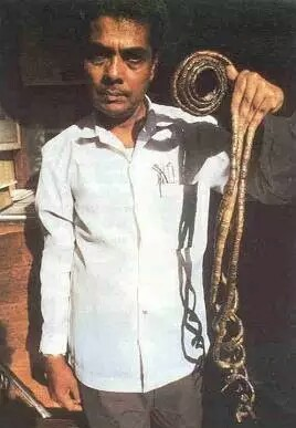 Man With World's Longest Fingernails Cut Them After 66 years (Photo)