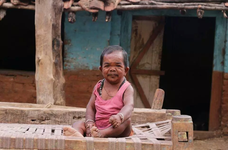 PHOTO: Meet the 50-Years Old Man Who Looks Like A 5-Year-Old