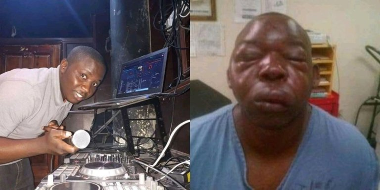 A Zambian Dj Beaten Heavily For Playing South Africa Music